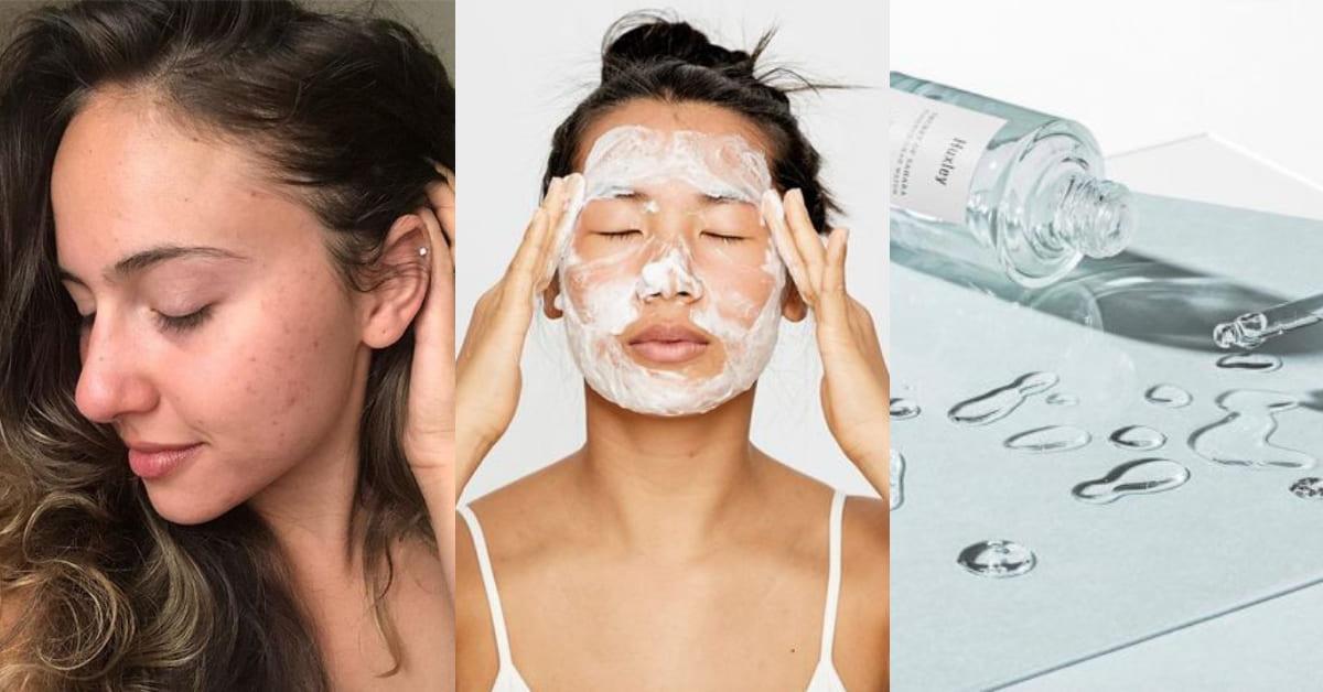A酸不是抗痘唯一選擇!黑頭、膿包、青春痘不同症狀怎麼治?選對化妝水更能擺脫痘花臉!