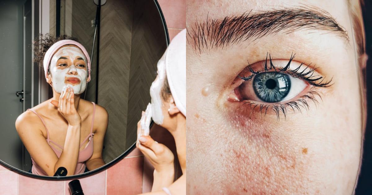 毛孔粗大怎麼辦?韓國皮膚科醫師5招解救,防曬、去角質還不夠,洗臉用「這個」最有效