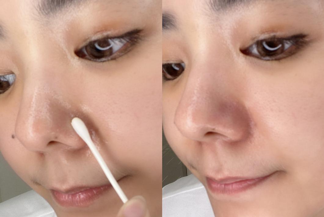 【神儂實驗室】嬰兒油可以洗臉?編輯親試3大隱藏用法,這招讓乾肌也能擠出水-2